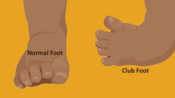 clubfoot